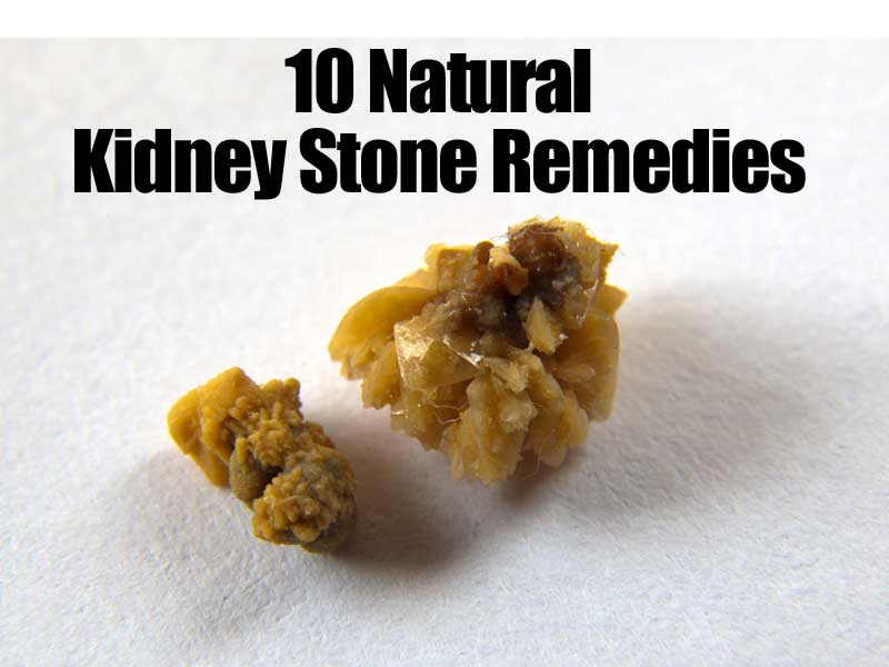 Home Remedies To Help Pass Kidney Stones