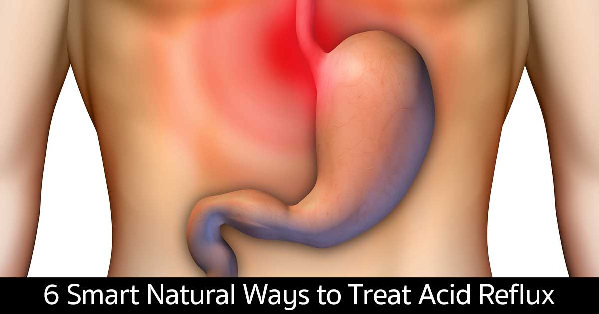 acid-reflux-natural-ways-11302015