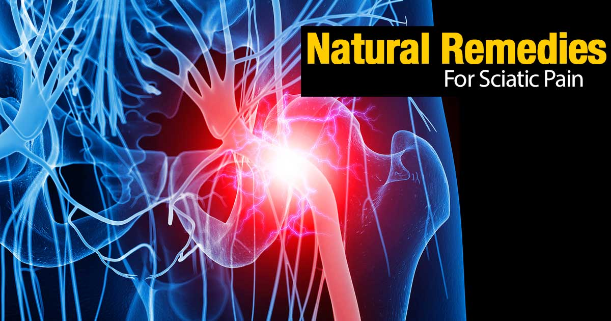 natural-sciatic-pain-remedies-02292016