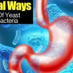 7 Natural Ways To Get Rid Of Yeast And Bad Bacteria!