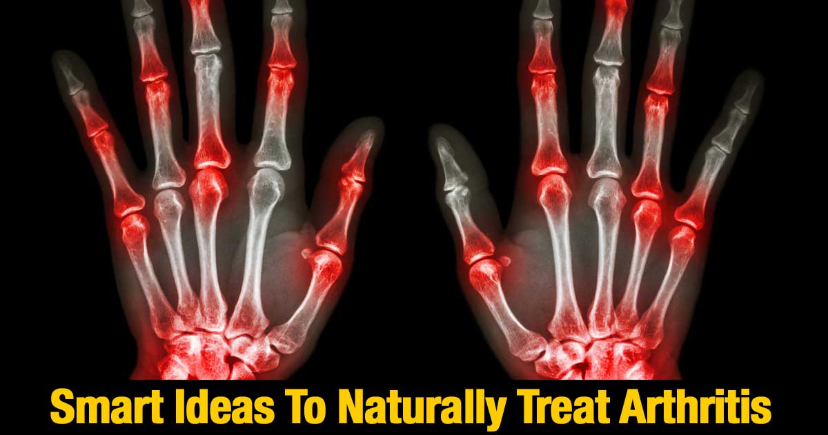 naturally-treat-arthritis-11302015