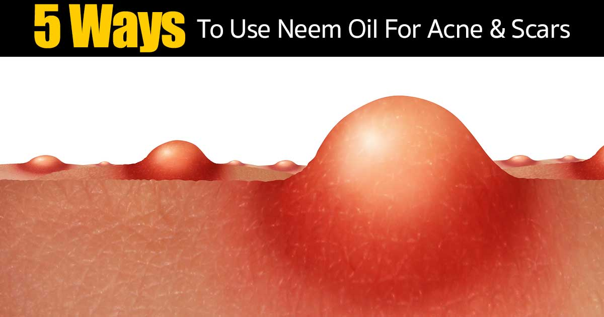 how is neem for acne