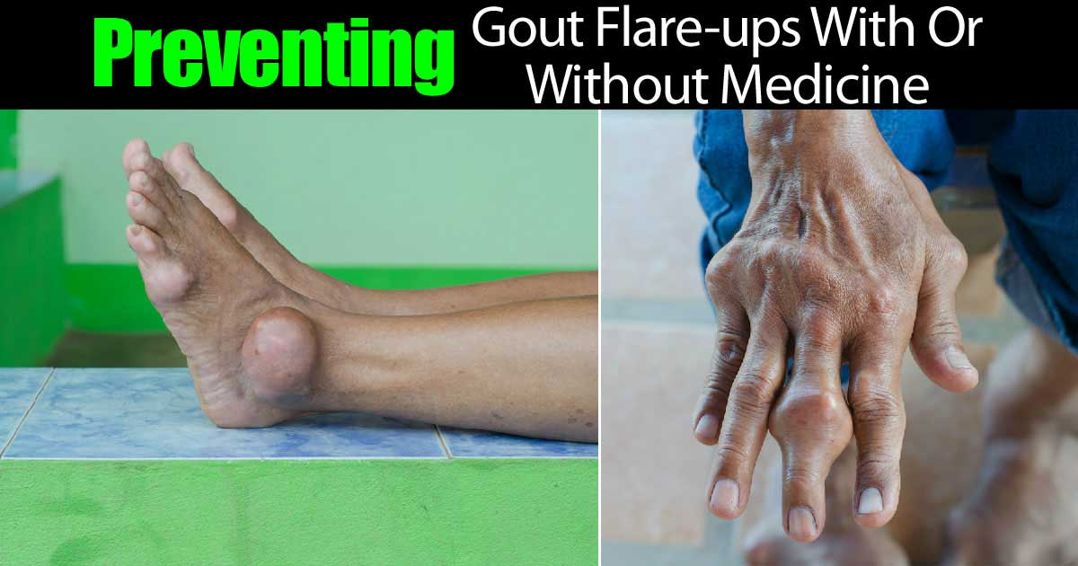preventing-gout-flare-ups-22820151188
