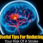 Useful Tips For Reducing Your Risk Of A Stroke