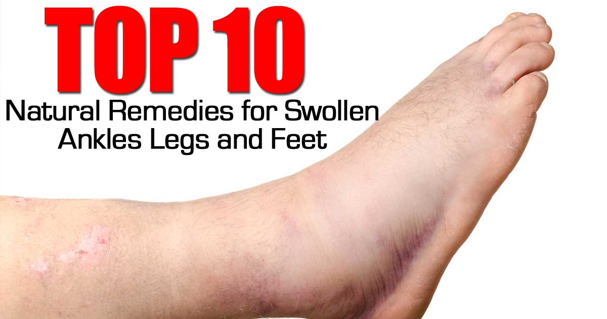 10 Top Natural Remedies For Swollen Ankles Legs And Feet