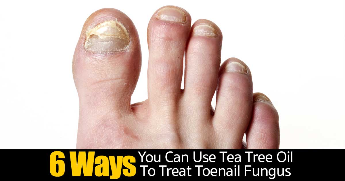 6 Ways You Can Use Tea Tree Oil To Treat Toenail Fungus -