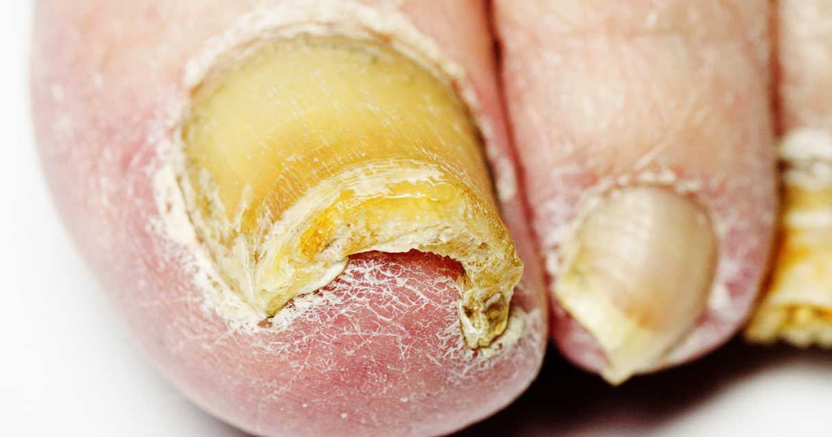Natural Ways To Rid Toe Fungus