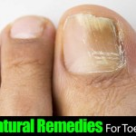 Top 10 Natural Remedies For Toenail Fungus