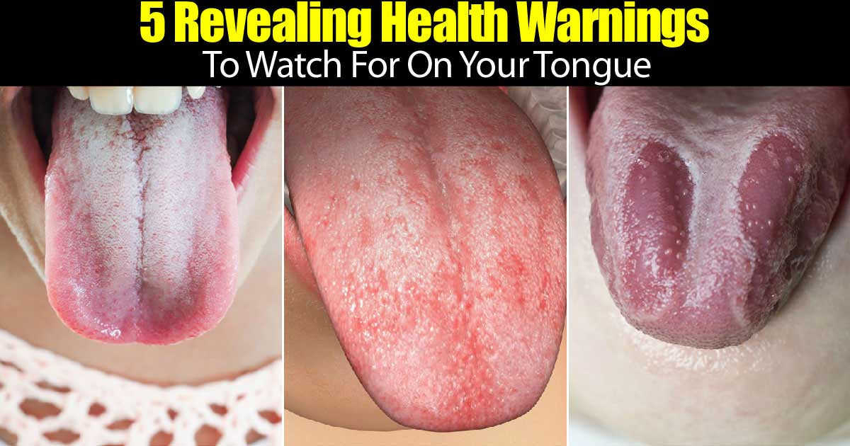 5 Important Health Warnings Your Tongue Speaks! -