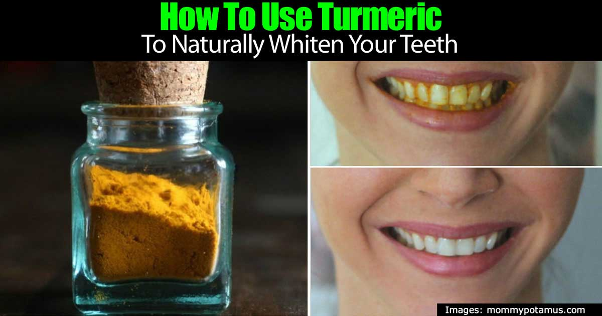 turmeric-teeth-93020151838